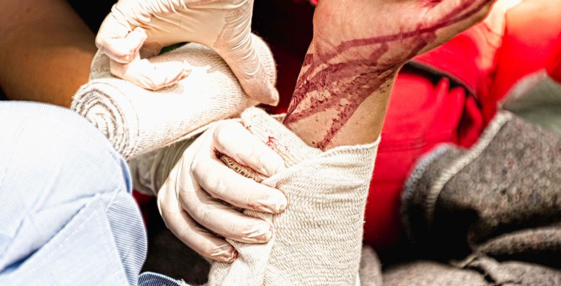 Wypadek komunikacyjny drogowy pierwsza pomoc krwotoki i urazy